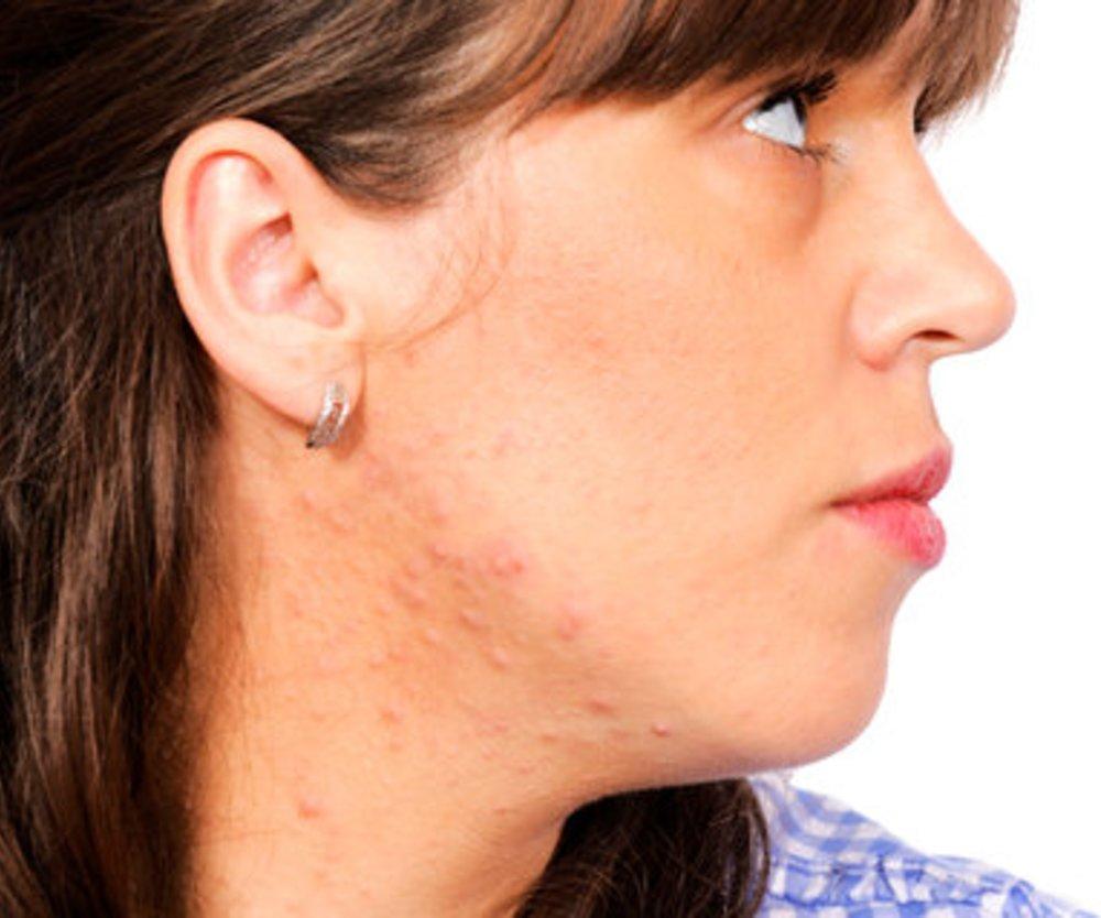Isotretinoin schadet Schwangeren