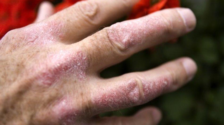 Nicht immer steckt eine Schuppenflechte hinter roter, schuppiger Haut.
