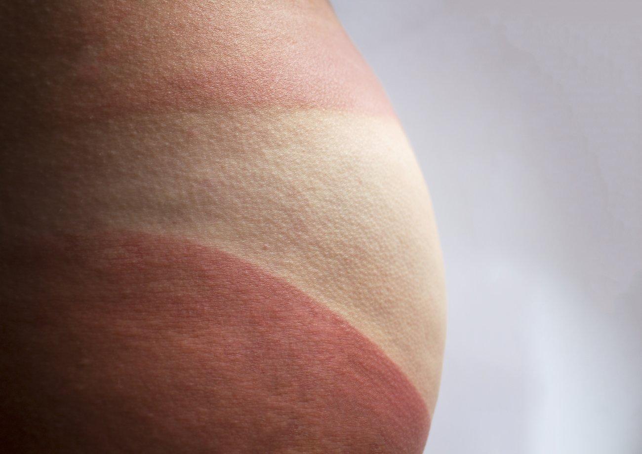 Sonnenbrand auf dem Po