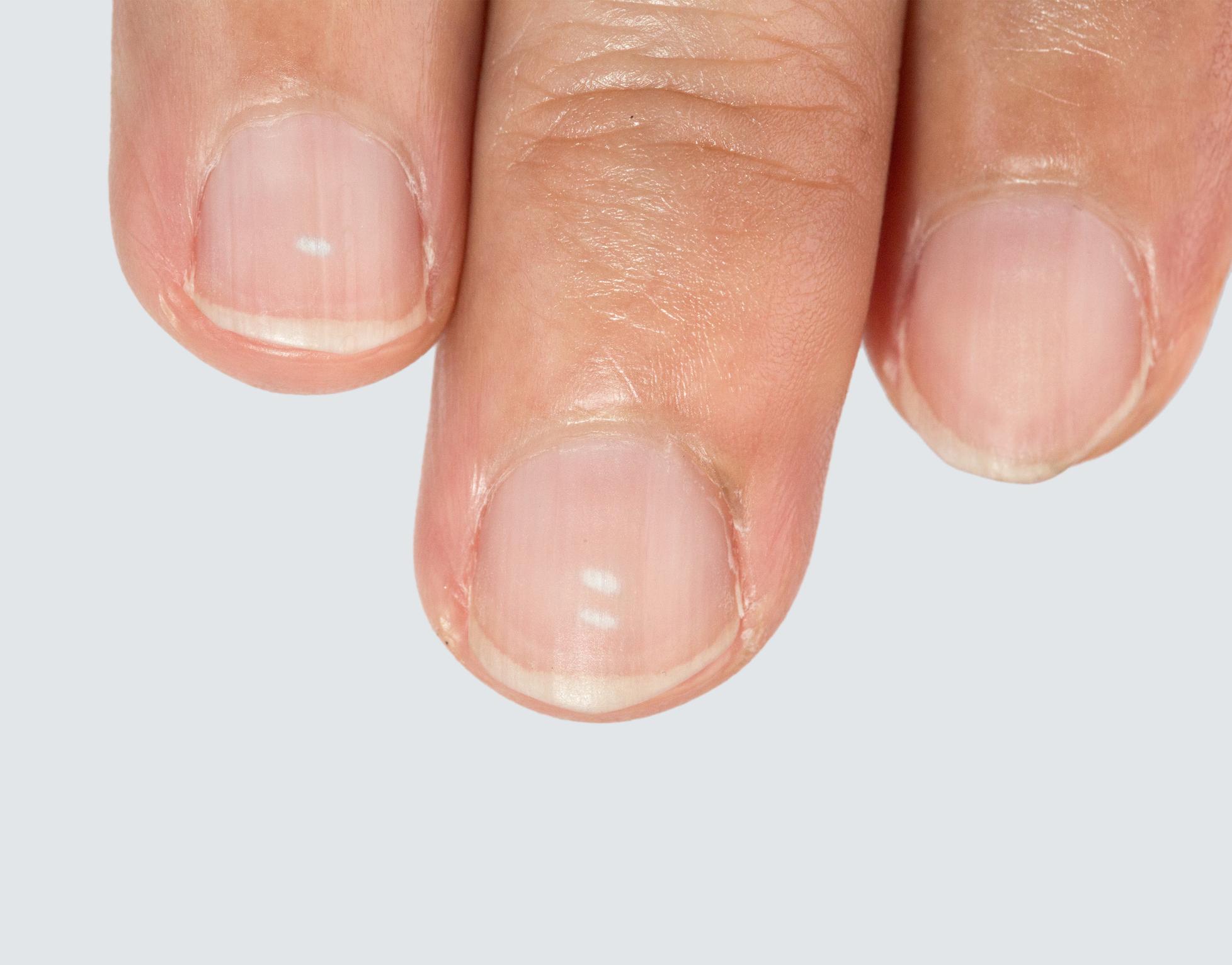 Warum haben meine Fingernägel weiße Flecken? | desired.de