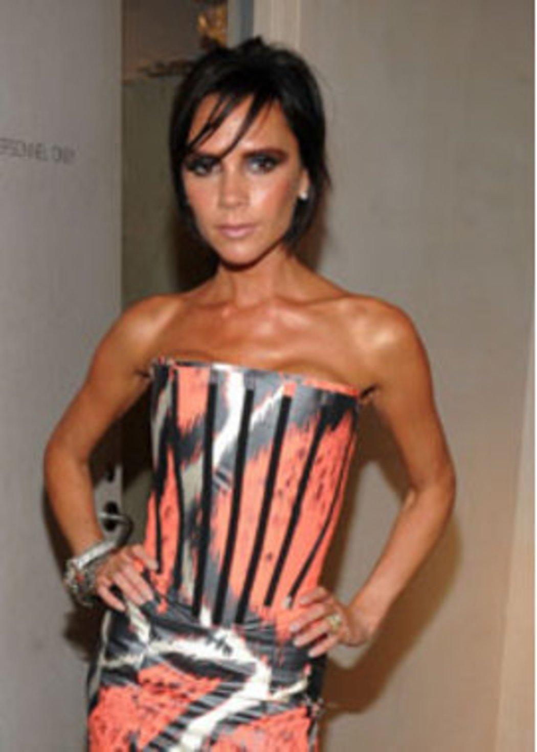 Außergewöhnlich Victoria Beckham muss ihre Füße operieren lassen - Top Story #XQ_81
