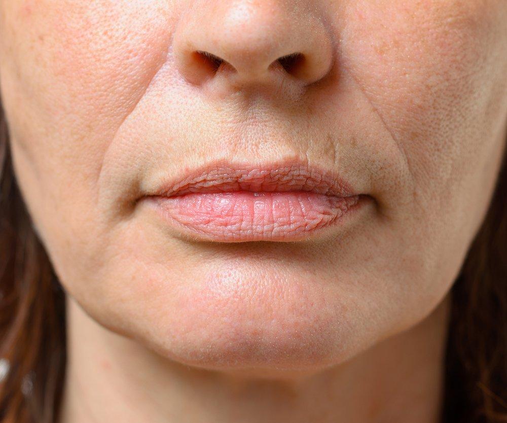 Lippenfalten