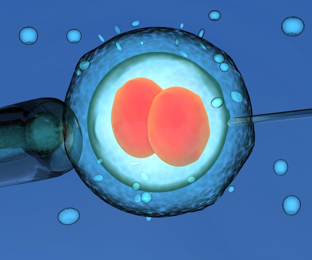 Artificial Insemination, human fertility, 3d render.