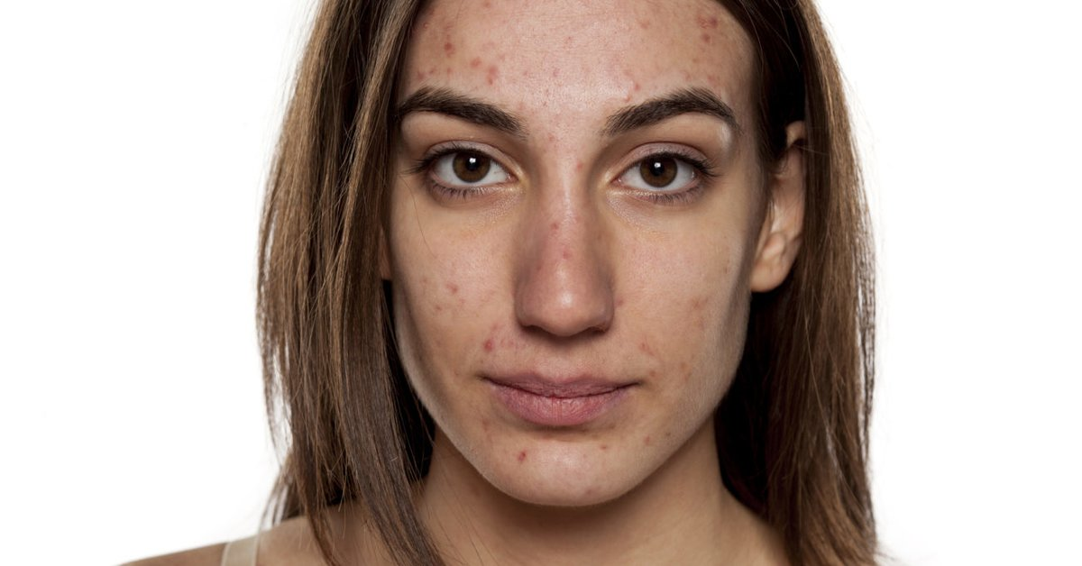 wie zu bereinigen, erwachsenen akne