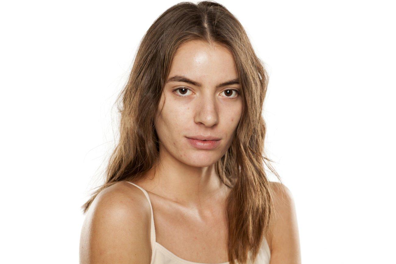Junge Frau mit unreiner Haut