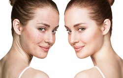 Hagebuttenöl wirkt Wunder gegen Akne-Narben.