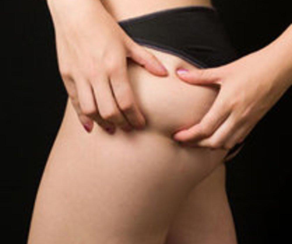 Cremes gegen Cellulite