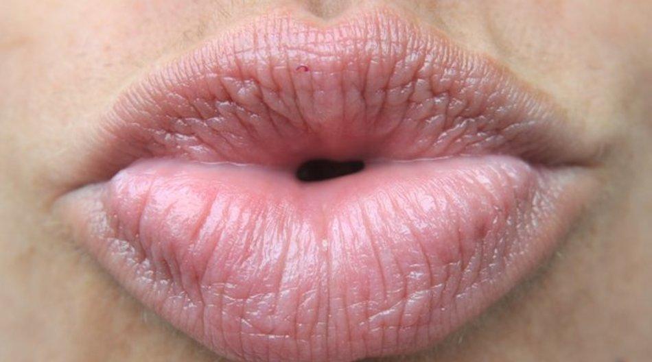 Bei der Lippenpflege können auch Hausmittelchen helfen - anstelle der üblichen Pflegestifte.