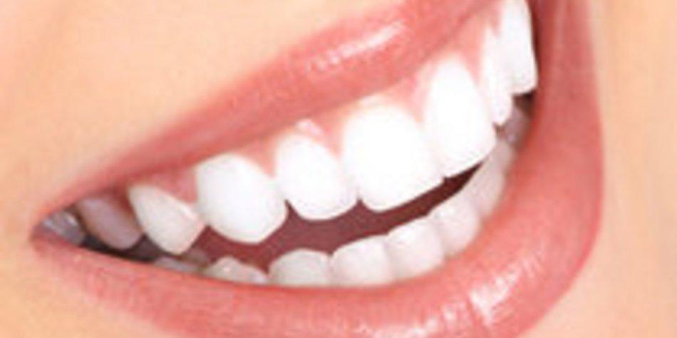 Weiße Zähne: Bleaching-Methoden im Vergleich