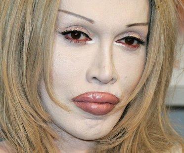 Botox-Fails der Stars: Megan Fox