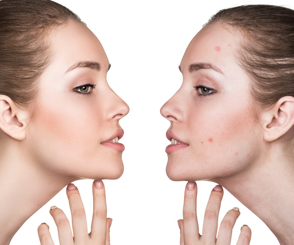 Comparison portrait of a woman with problematic skin before and after treatment