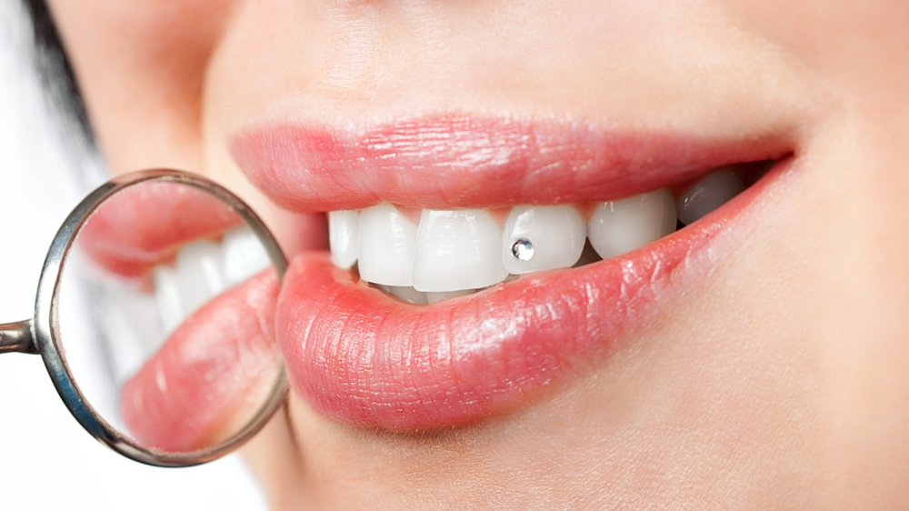 Glitzersteine Zähne