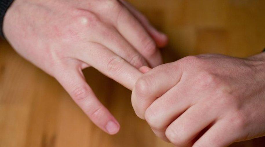 Das knackende Geräusch beim Auseinanderziehen von Fingern entsteht durch die Bildung eines Hohlraums im Gelenk.
