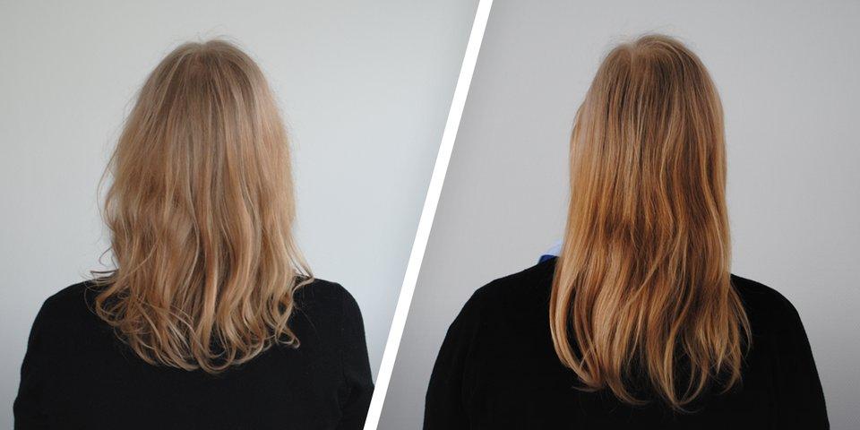 Erfahrungen frau haartransplantation ▷ Haartransplantation