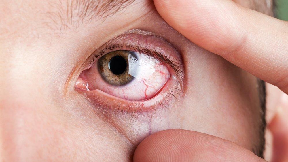 Kontaktlinsen in Augen gefunden