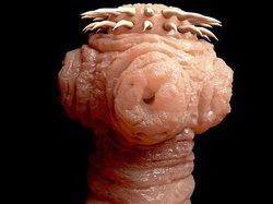 Bandwurm Diät