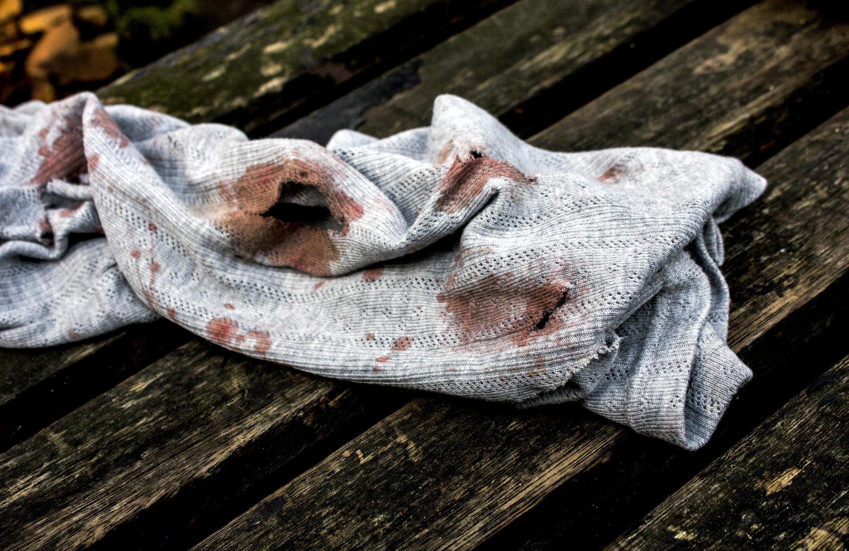 Bevorzugt Eingetrocknete Blutflecken entfernen: So geht's | desired.de VX05