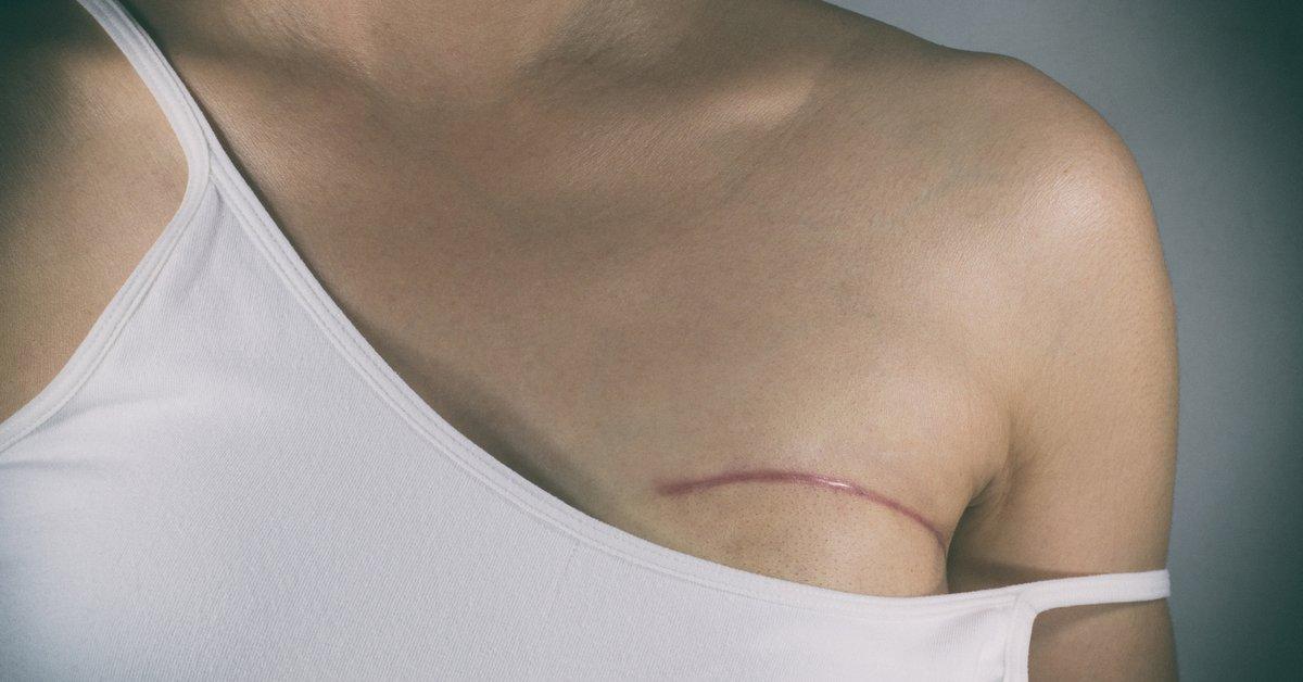 brustkrebs und nippel