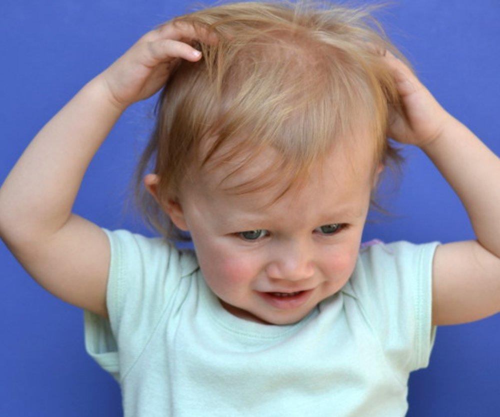 Kopfläuse bekämpfen: So vermeidest Du eine Neuansteckung