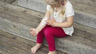 Die Nesselsucht – rote Quaddeln auf der Haut