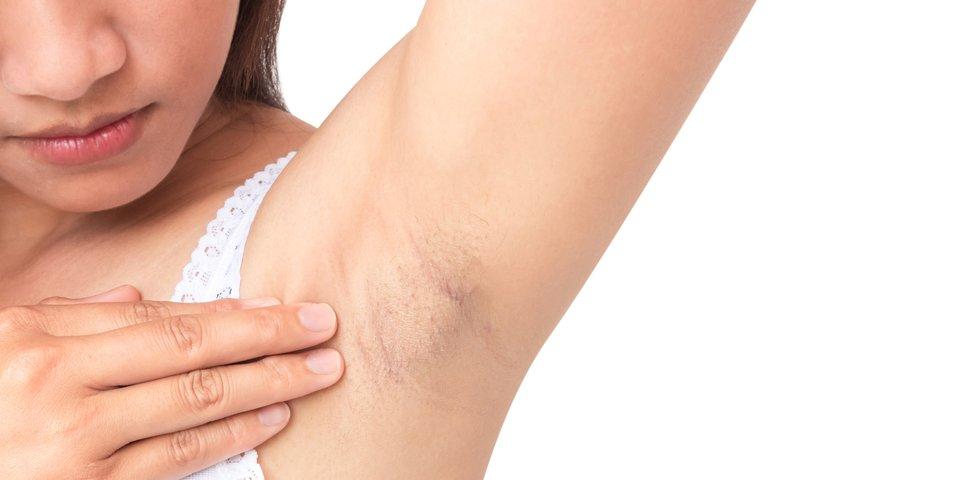 Arm knoten unter dem Kirschkerngroßer Knoten
