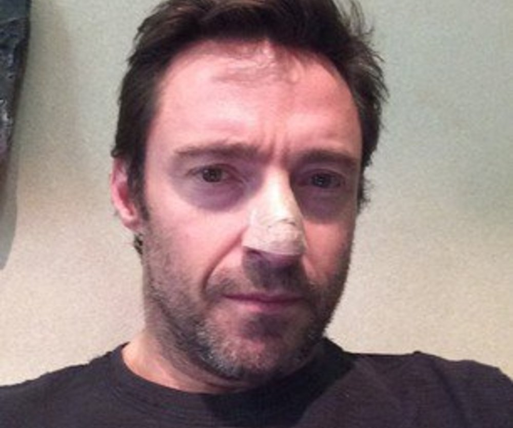 Hugh Jackman: Schockdiagnose Krebs