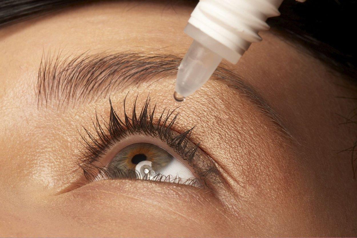 Pickel im Auge mit Augentropfen behandeln