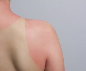 Hausmittel gegen Sonnenbrand
