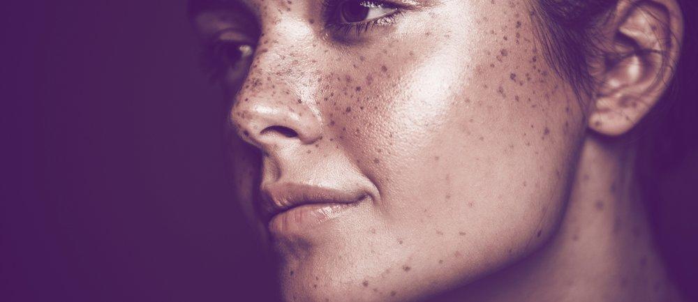Schwitzen im Gesicht