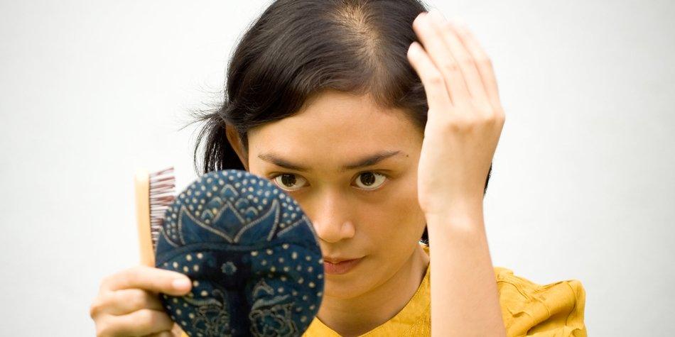Haartransplantation Erfahrungen