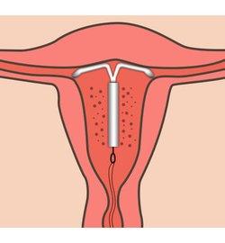 Schwangerschaft trotz mirena