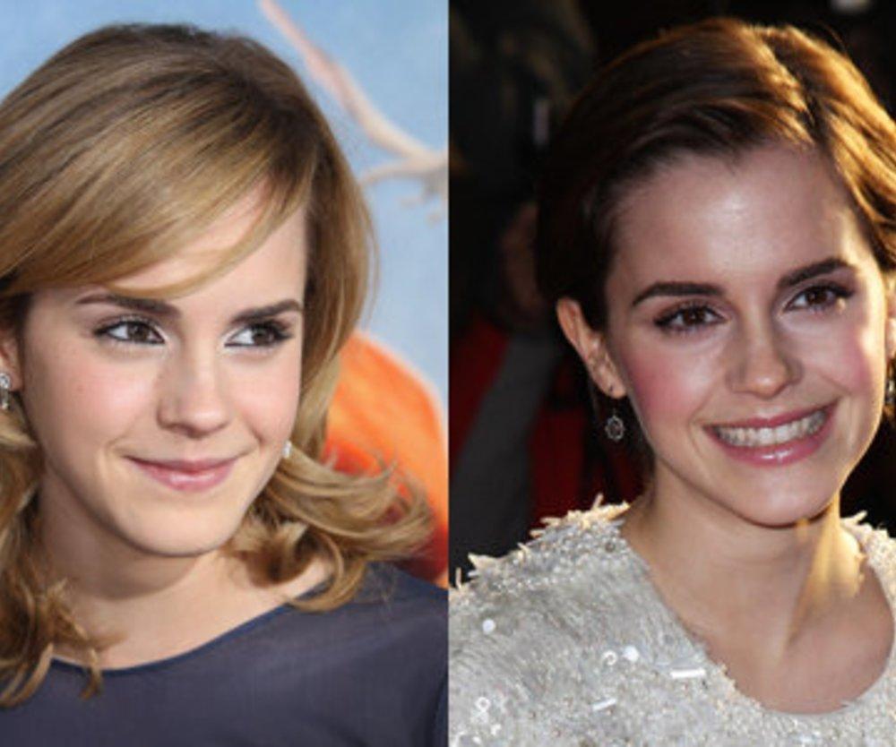 Emma Watson sorgt mit Kurzhaar-Frisur für Gerüchte