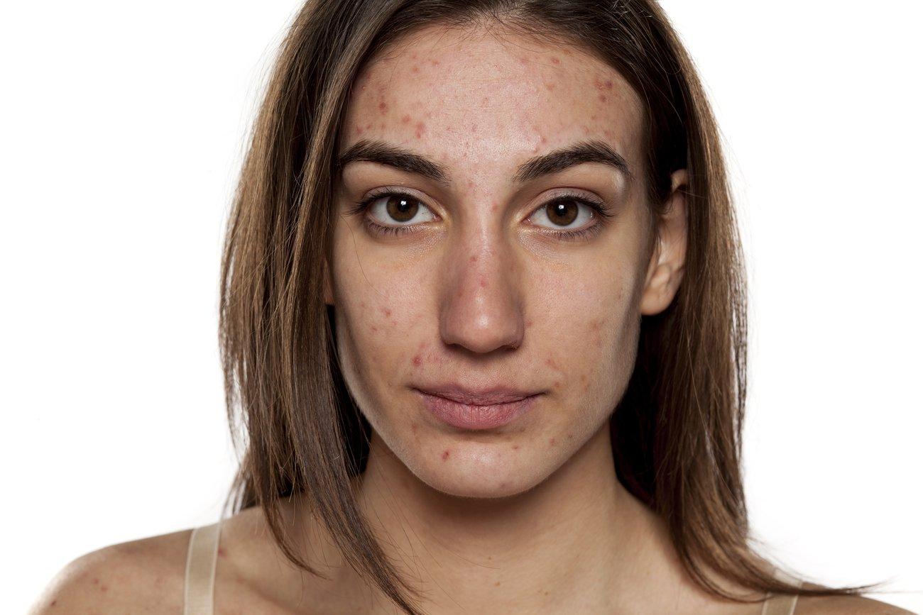 Akne im Gesicht Formen Behandlung