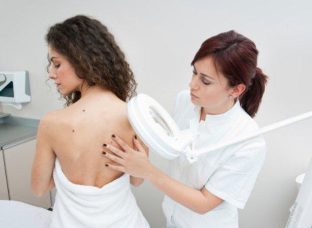 Leberfleckenscreening beim Hautarzt