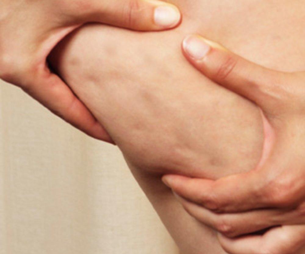 """Der berühmt-berüchtigte """"Kneif-Test"""" bei Cellulite: Wer hat das nicht auch schon mindestens ein paar Mal ausprobiert?"""