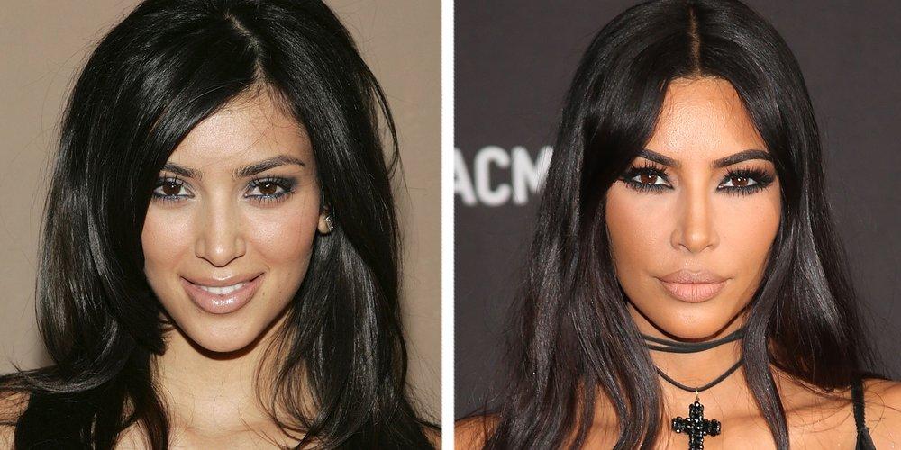 Kim Kardashian vorher nachher