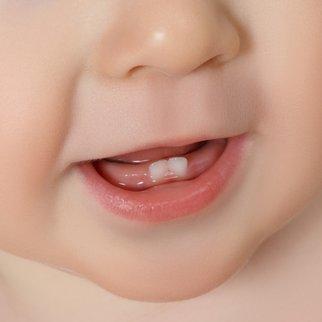 Wie viele Milchzähne hat ein Kind