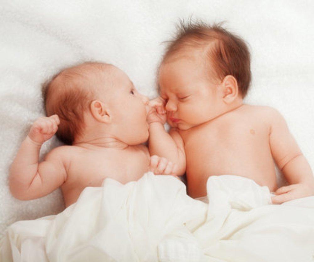 Siamesische Zwillinge in Brasilien