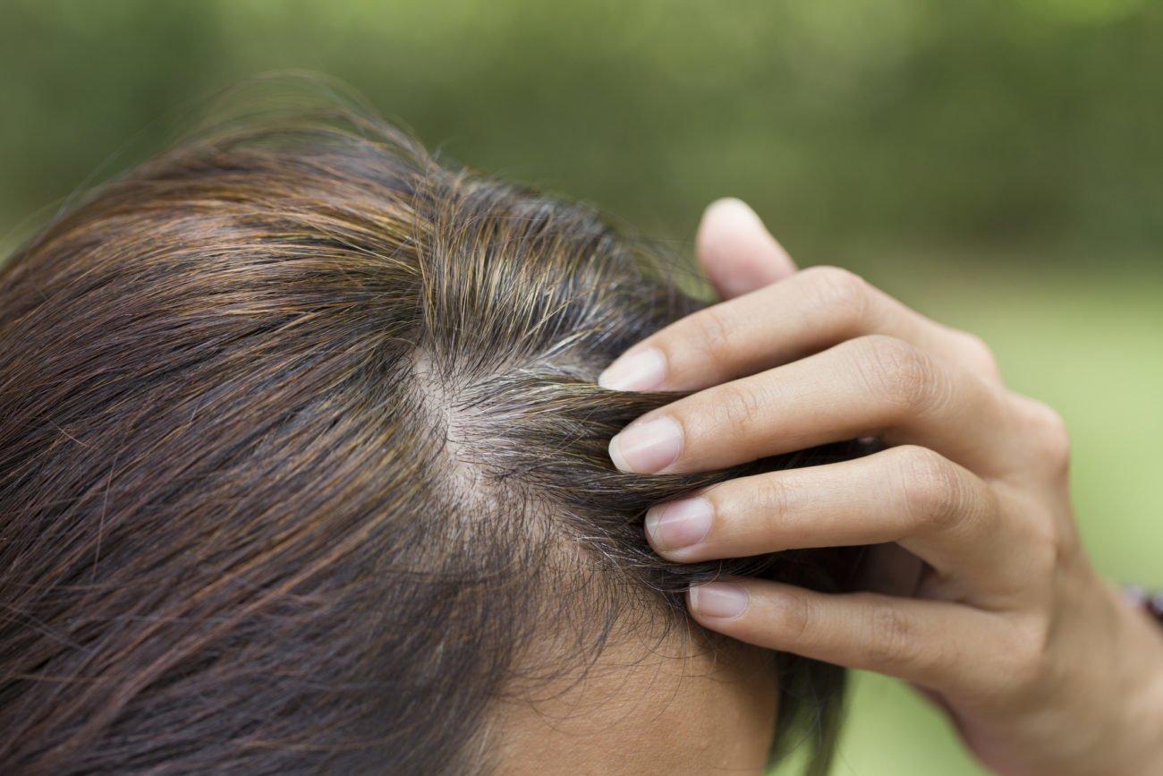 Vorzeitig ergraute Haare