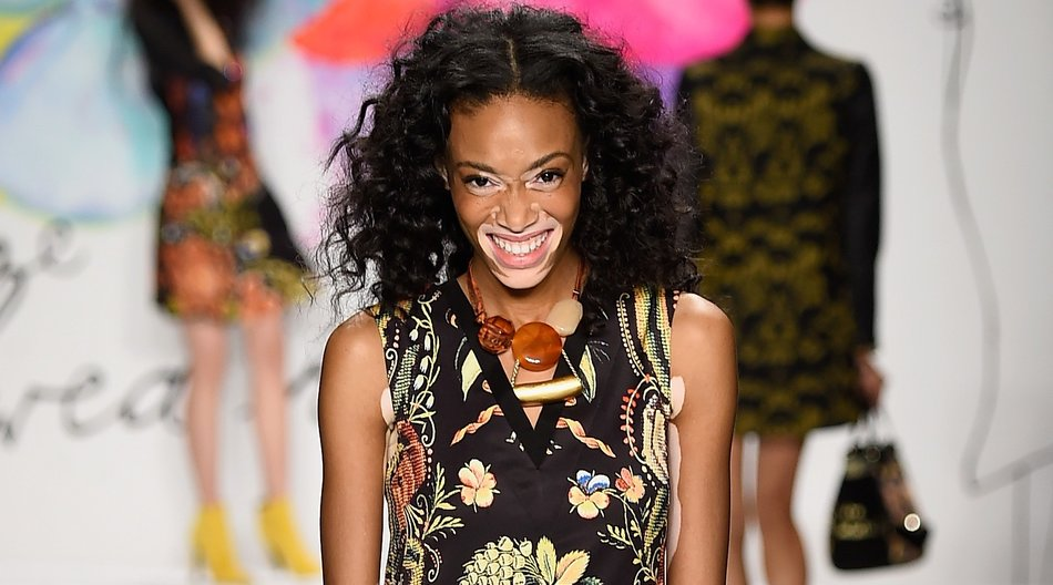 NEW YORK, NY - FEBRUARY 12: Winnie Harlow walks the runway at the Desigual fashion show during Mercedes-Benz Fashion Week Fall 2015 at The Theatre at Lincoln Center on February 12, 2015 in New York City. (Photo by Frazer Harrison/Getty Images for Mercedes-Benz Fashion Week)