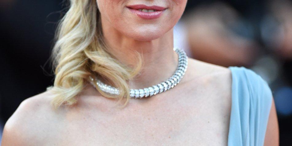 Naomi Watts unter Botox-Druck?