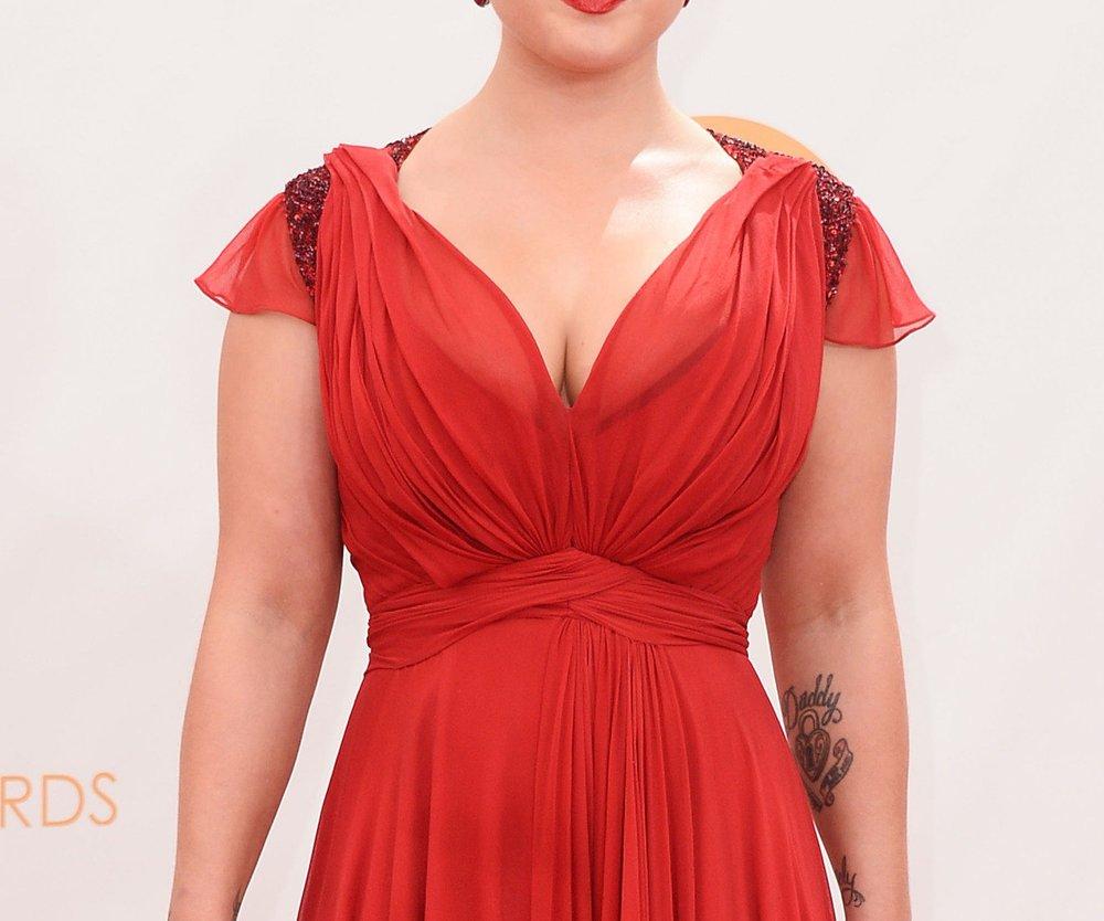Kelly Osbourne lässt sich ein Tattoo entfernen!