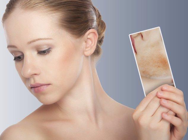 Neurodermitis ist eine sehr unangenehme Erkrankung