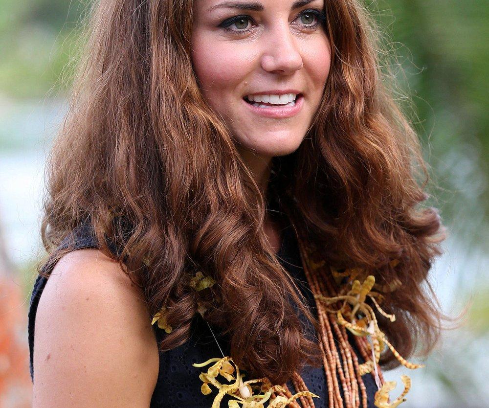 Kate Middleton: Neue Skandal-Fotos mit Babybauch
