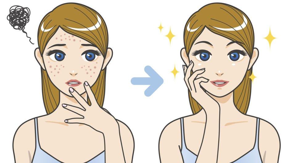 Mitesser entfernen Zahnseide