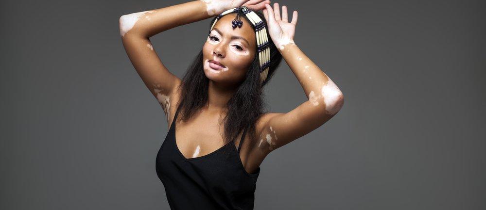 Vitiligo ist schön.