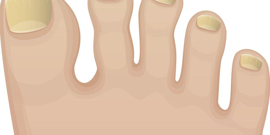 Gelbe Fußnägel