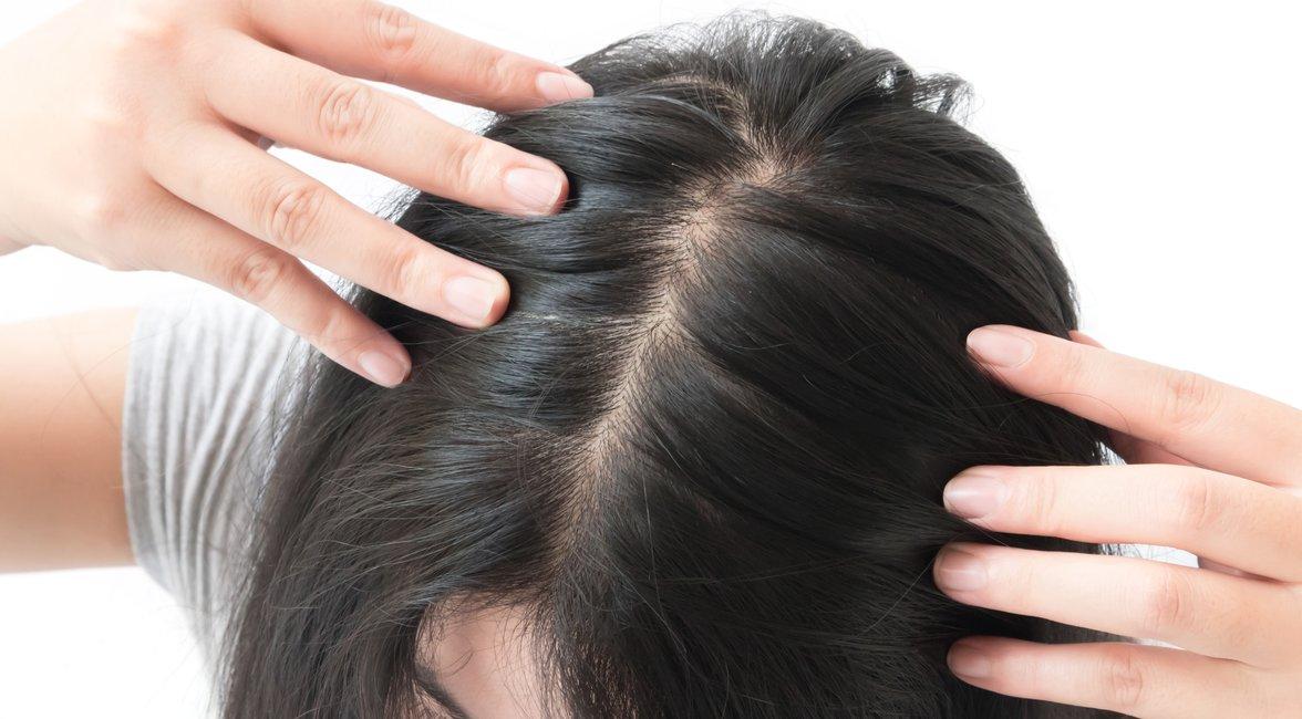 Scheitel frau breiter Haarausfall bei