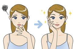 Tipps gegen kleine Pickel im Gesicht