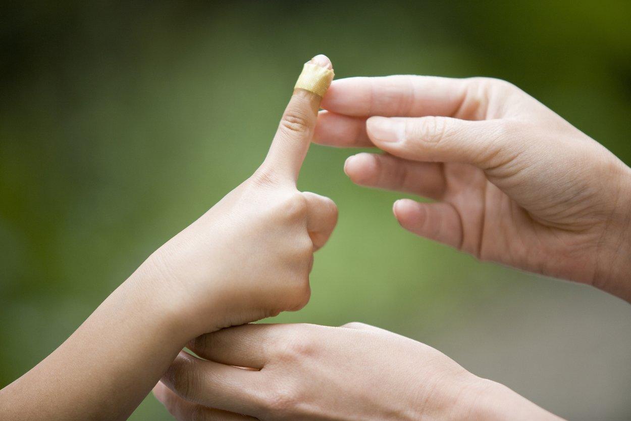 Kind hat Dellwarze an der Hand